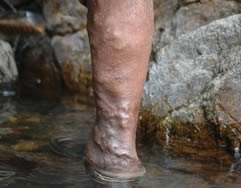 Varicose Veins Cropped